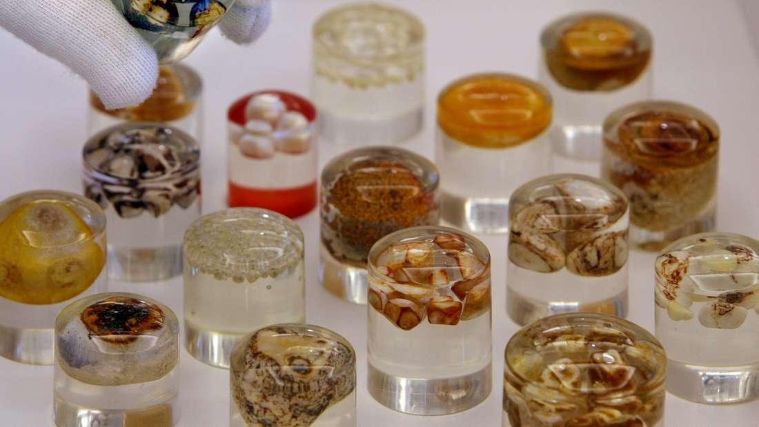 In Kunstharz gegossene Gallensteine werden am Mittwoch im Medizinhistorischen Museum der Charité in Berlin.