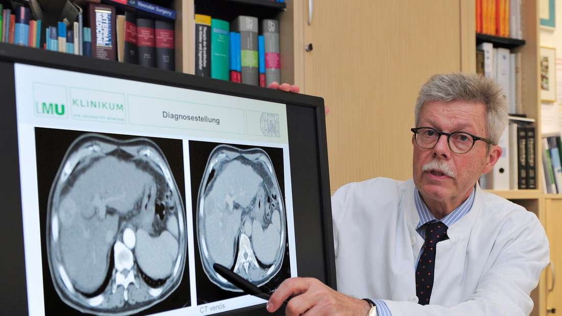 Patienten mit Hepatitis C sollten sich regelmäßig untersuchen lassen, rät Prof. Alexander Gerbes. Nur dann können Folgen wie der Lebertumor, den die CT-Aufnahme zeigt, rechtzeitig behandelt werden.