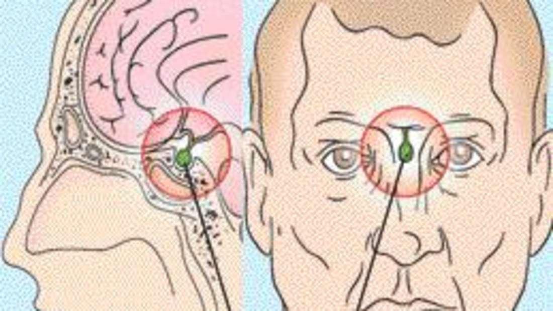 Die Hypophyse liegt unterhalb des Gehirns, etwa auf der Höhe der Nase in der Mitte des Schädels.