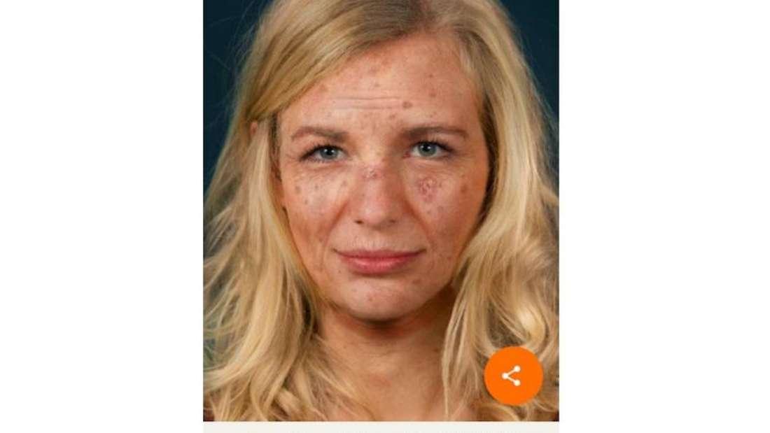 Die Sunface-App zeigt, wie UV-Strahlen langfristig die Haut verändern. Foto: Google Play Store/dpa