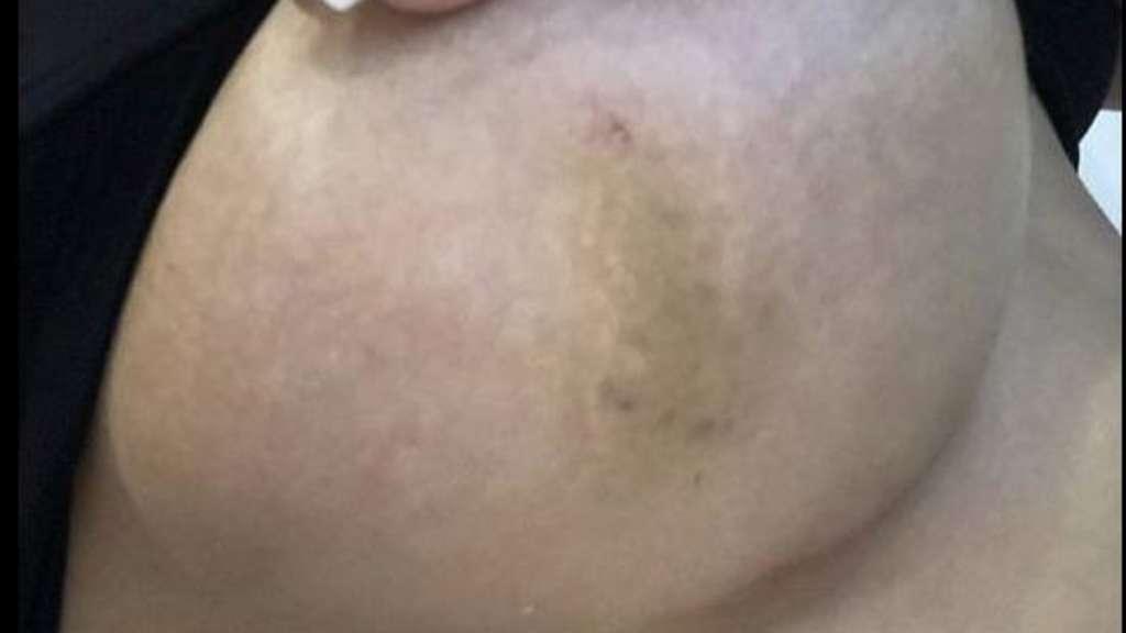 Blaue Adern Brust Vor Menstruation
