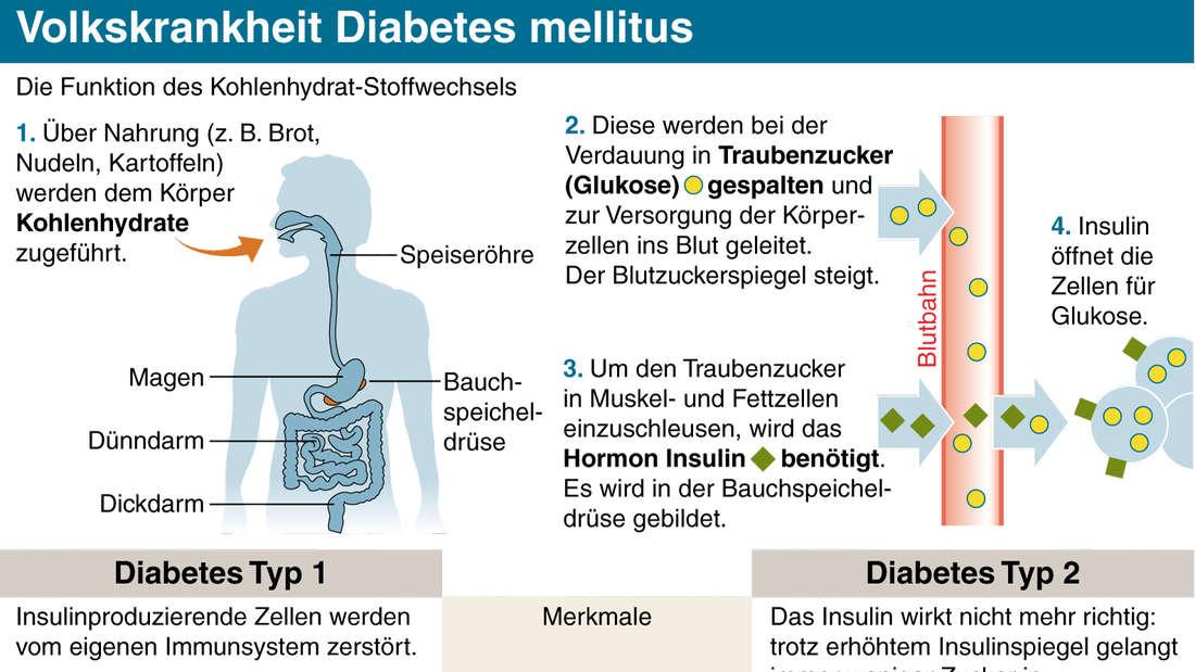 Volkskrankheit Diabetes mellitus: Eine Infografik zur Unterscheidung von Typ 1 und Typ 2.