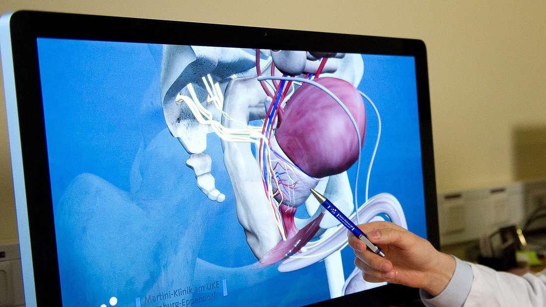 Prostatakrebs-Vorsorge: Ein Arzt zeigt auf einem Bildschirm auf die Prostata