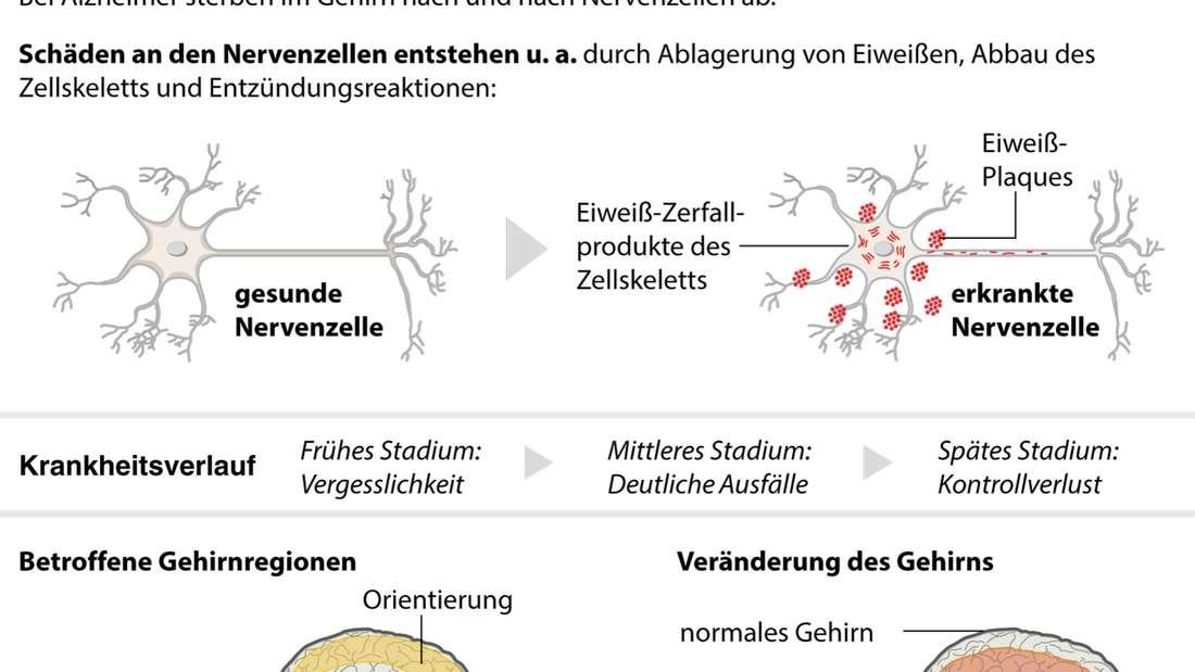 Eine Grafik erklärt die Alzheimer Krankheit